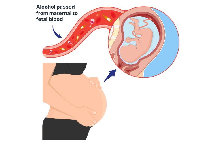 fetal alcohol spectrum disorder alcohol entering fetal bloodstream