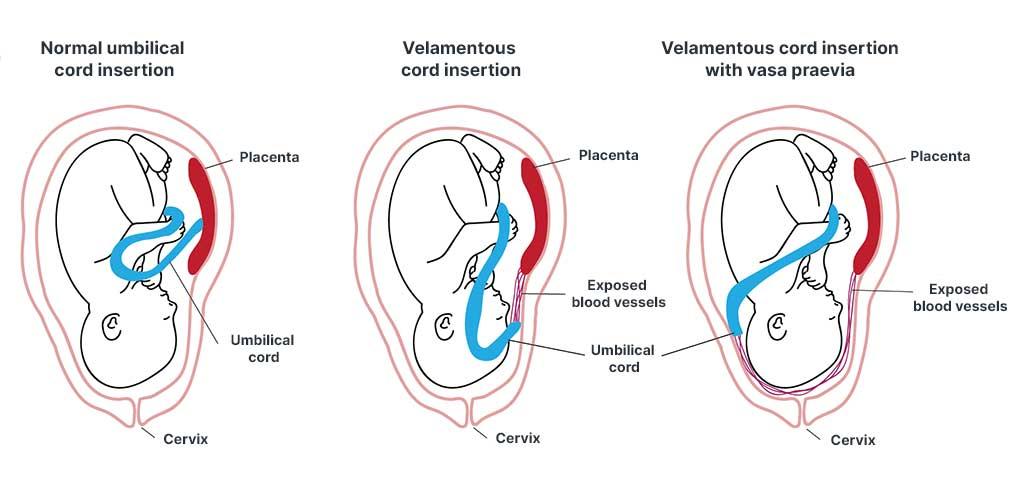vasa praevia with velamentous cord insertion